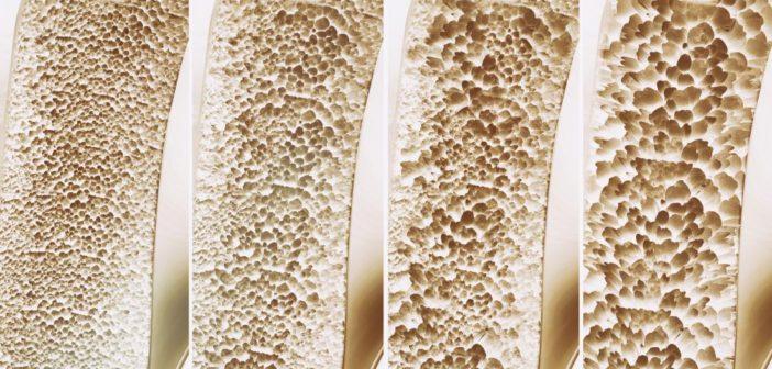 Osteoporosis-702x336